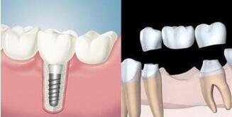 种植牙的寿命取决于这三个方面