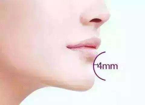 宝鸡高一生玻尿酸注射隆下巴的优势