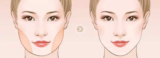 宝鸡高一生下颌角整形术术后恢复多久