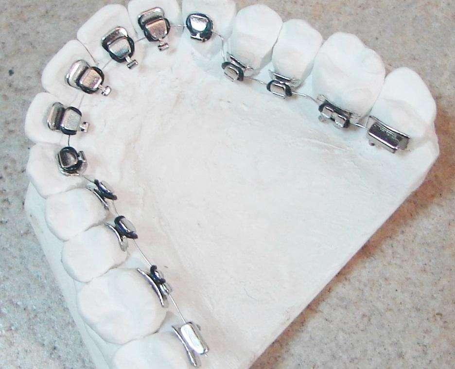 北京牙齿矫正的价格大概是多少