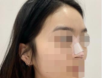 分享我隆鼻术后64天完美漂亮的鼻子