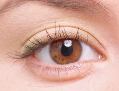 激光祛眼袋帮你打造青睐魅眼