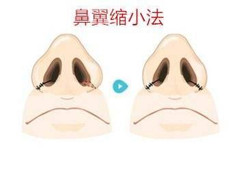长沙希美鼻翼缩小术能管多久