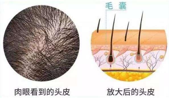 宝鸡高一生头发种植优势是什么