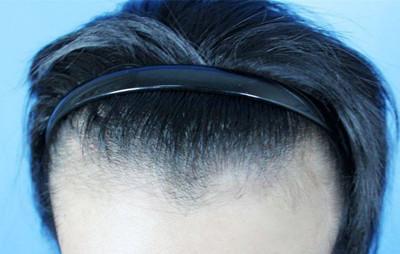 宝鸡高一生发际线种植术后长出新毛发的时间要多久