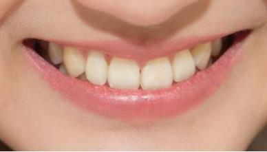 滨州华美牙槽骨突出矫正术有哪些优点