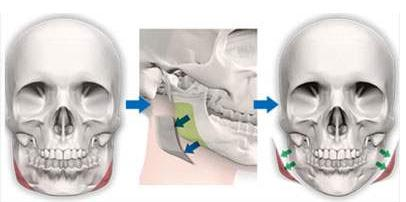 做完下颌角切除手术后会出现增生吗