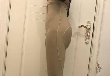 分享大腿吸脂手术后拥有了苗条大腿的变美日记