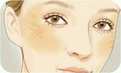 长沙希美治疗黄褐斑的优势