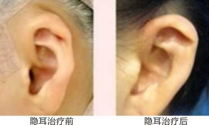 宝鸡高一生隐耳整形手术后的特点是什么
