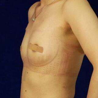 自体脂肪隆胸让我具有了深V