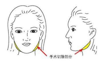 下颌角整形手术能让脸变小不
