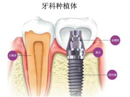 烤瓷牙有保护牙体组织和牙髓的后果