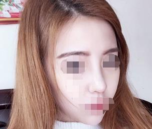 肋软骨隆鼻蜕变历程分享,不得不夸赞一下医生的技术