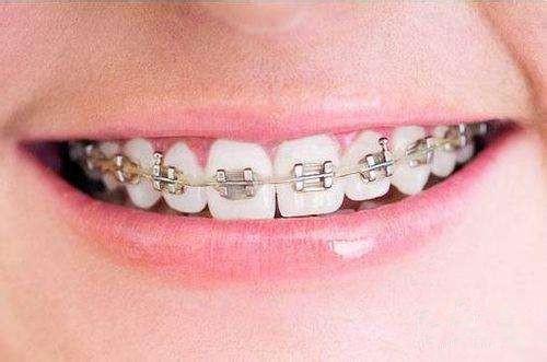 北京牙齿矫正价格是多少