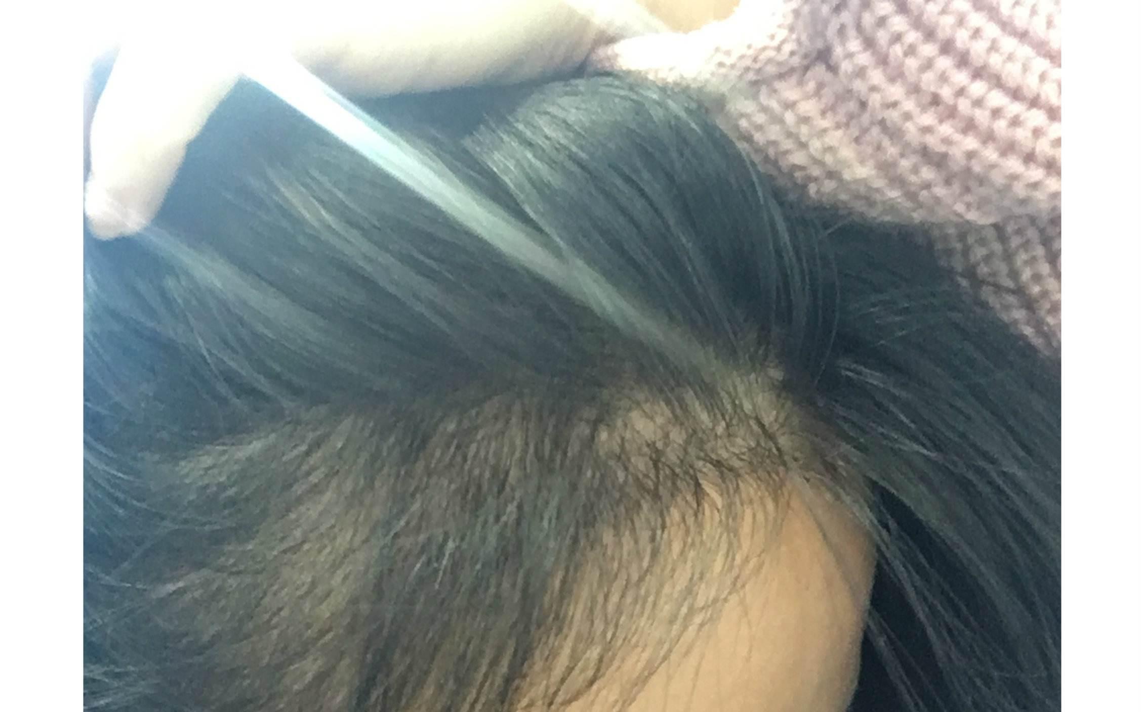 长沙希美发际线种植术后长出新毛发的时间要多久