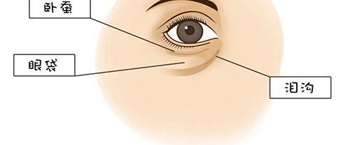 抽脂、开刀、激光法,这三种祛眼袋哪一种好