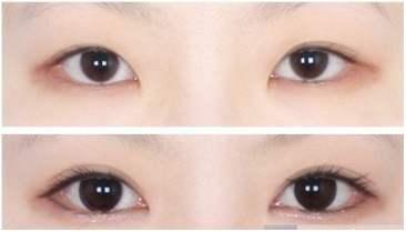 眼角开大手术是怎样进行的