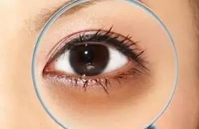 激光去黑眼圈会有疤痕吗