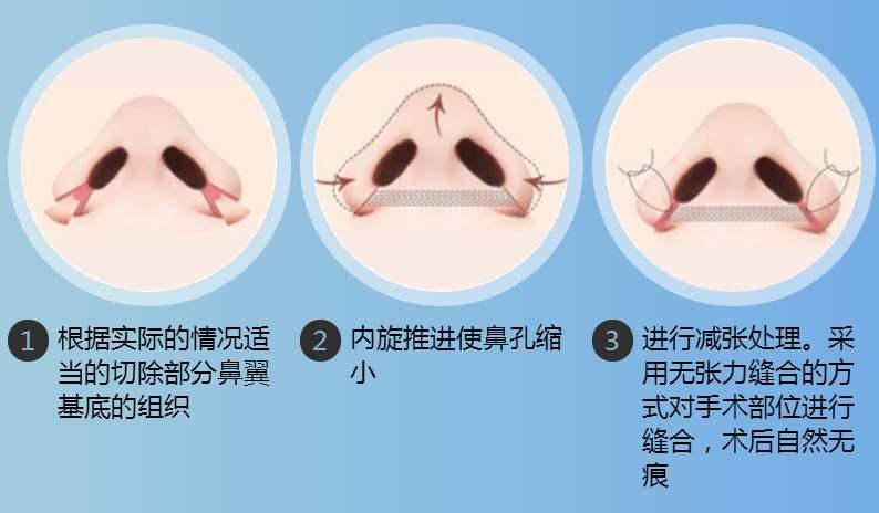 鼻翼缩小手术后遗症是否存在