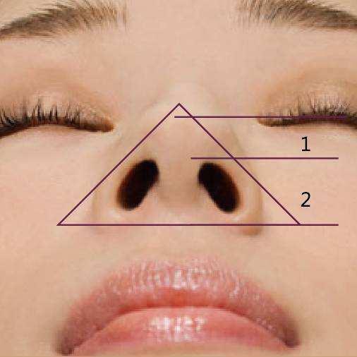 延长鼻小柱后一周能化妆吗