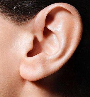 长沙希美杯状耳矫正的手术效果好吗