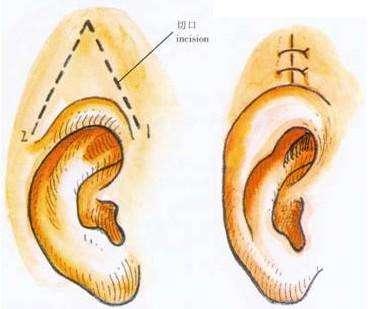 长沙希美隐耳整形有什么实际效果