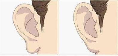长沙希美玻尿酸丰耳垂优点