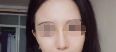 脂肪填充太阳穴术后59天太阳穴变高了,整张脸变得也有了立体感