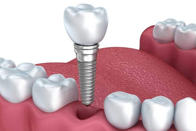 长沙希美种植牙齿的过程是怎么样的