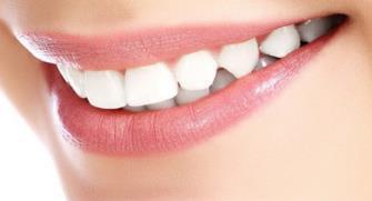 杭州牙齿矫正价格8000-20000/疗程