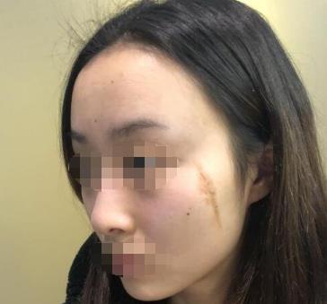 激光祛疤半年后疤痕不见了,皮肤越来越光泽了