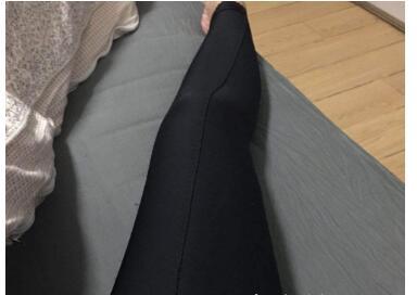 大腿吸脂术后52天