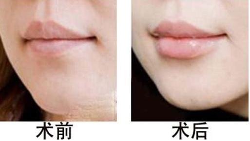 长沙希美自体脂肪丰唇的效果怎么样