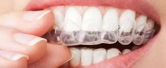 牙齿美容是全民福音,牙齿矫正3种方法在这里