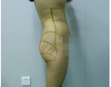 丰臀术后臀部变得更加的丰满了,我也拥有了前凸后翘的身材
