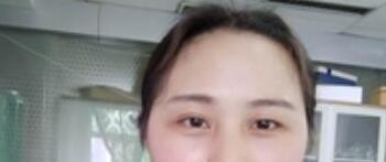 分享双眼皮术后2个月越来越漂亮的自己