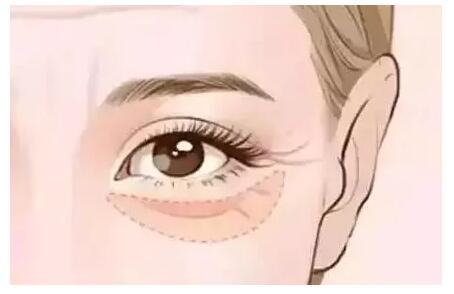 擦再多眼霜,不如做1次眼部热玛吉