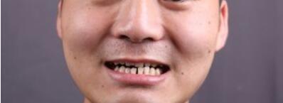 牙齿矫正术后90天,牙齿比之前看起来整齐了很多