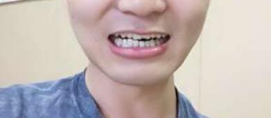 牙齒矯正術后90天,牙齒比之前看起來整齊了很多