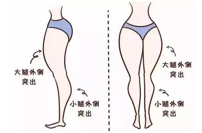 【精品解讀】注射瘦小腿和吸脂瘦小腿,哪個更適合你