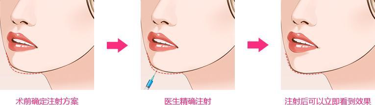 湖南韩美自体脂肪隆下巴后要注意什么