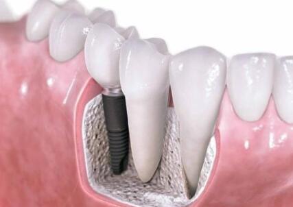 種植牙的過程是怎樣的
