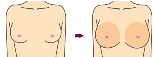 沈阳目前做乳房下垂矫正术大概需要20000-60000元