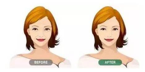 注射愛貝芙除皺可以維持多久時間