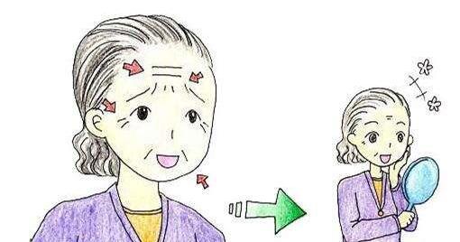 太原麗都電波拉皮除皺后什么時候見效