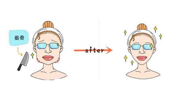 下頜角整形術后消腫時間需要多久
