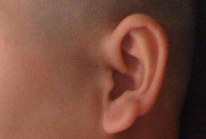 棗莊礦務局醫院附耳切除后能夠洗頭嗎