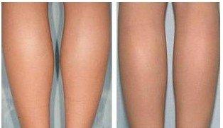 西安鵬愛水動力吸脂瘦小腿有用嗎