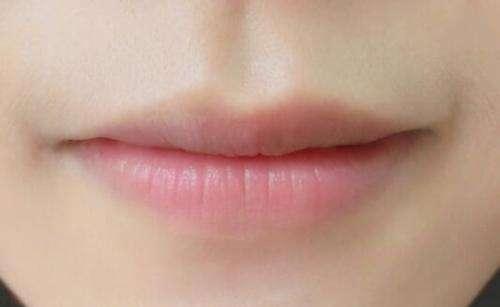 西安鵬愛厚唇修薄術適應對象